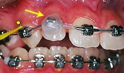 Les parties les plus irritantes des appareils peuvent être recouvertes de cire pour soulager temporairement.