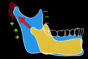 Croissance mandibulaire mandibular growth