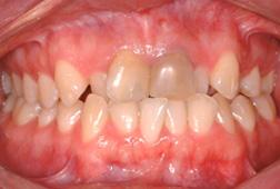 """Des dents dévitalisées ou """"mortes"""" deviennent plus sombres. Ceci n'est habituellement pas une contre-indication à l'orthodontie"""