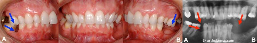 Perte de dents postérieures chez un adulte. D'un côté (A), la perte d'une molaire inférieure a permis aux autres molaires de basculer vers l'avant. De chaque côté (A et B), les molaires supérieures migrent vers l'espace du bas (extrusion). Ces dents devront idéalement être replacées pour permettre au dentiste de faire un meilleur remplacement prothétique des dents manquantes.