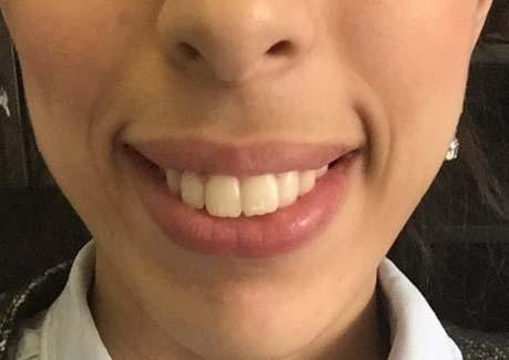 Préparation orthodontique en vue d'une chirurgie orthognathique aux mâchoires