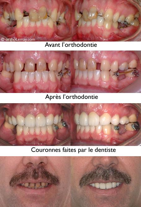 """Adulte présentant une dentition """"mutilée"""" (caries, dents fracturée et extraites). L'orthodontie a préparé la dentition pour que le dentiste puisse faire des restaurations adéquates (couronnes et ponts)."""