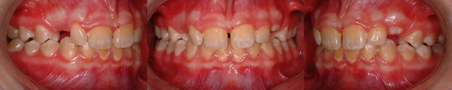 La présence de taches et l'accumulation de plaque sur cette dentition est un signe de mauvaise hygiène buccale et peut être une contre-indication à entreprendre un traitement d'orthodontie. Afin d'éviter des porblèmes de caries et de décalcification, l'hygiène doit être impeccable pendant le port d'appareils orthodontiques.