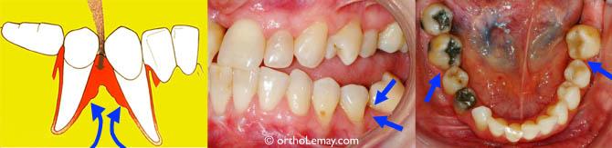 Une dent extraite ou manquante permet aux autres dents de basculer vers l'espace. Ceci crée des régions difficiles à nettoyer où la nourriture et la plaque peuvent s'accumuler et causer de l'irritation, de l'inflammation et éventuellement une perte de gencive et d'os (flèches). Le redressement des dents basculées permet de minimiser cette destruction des tissus