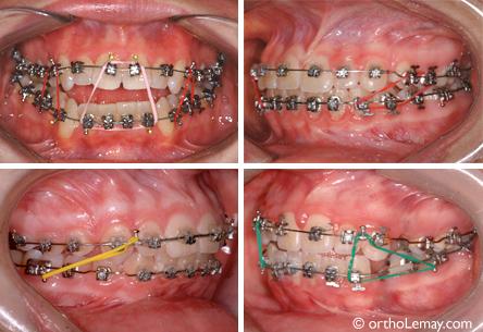 201 Lastiques Et Composantes Des Appareils Orthodontiques