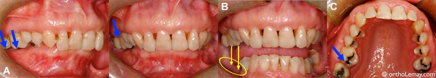 Éruption excessive de dents à la suite de la perte de molaires.