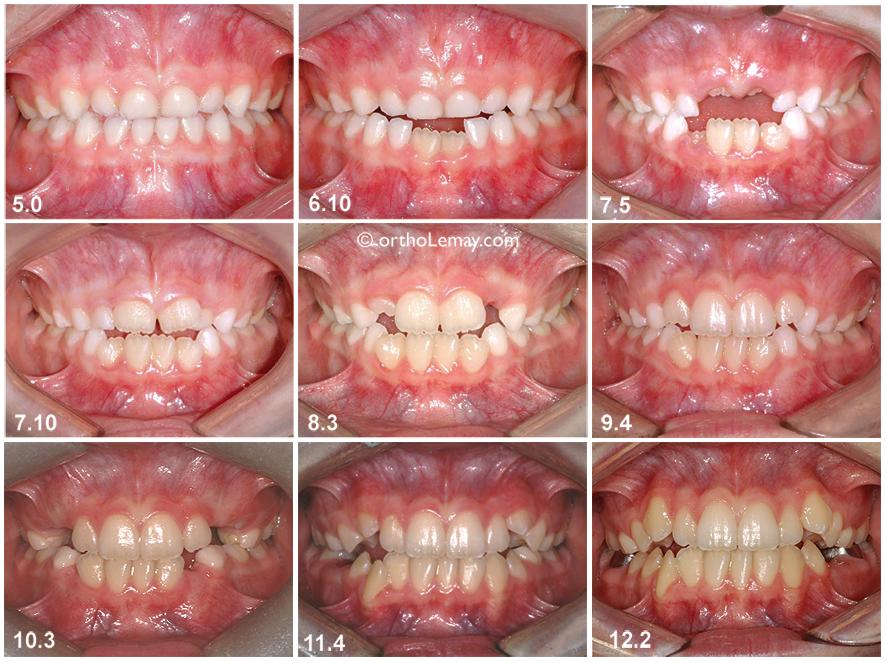 Développement dentaire et éruption des dents chez une jeune fille de l'âge de 5 à 12 ans.