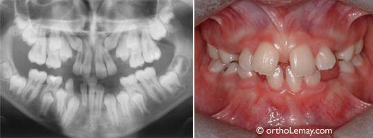 Une radiographie panoramique permet d'évaluer ce qui n'est pas toujours visible en bouche