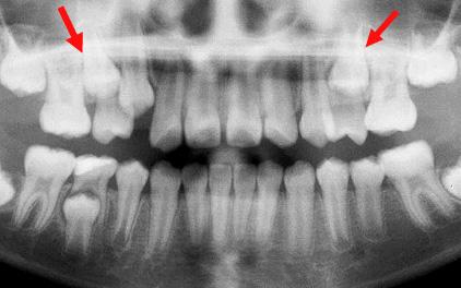 Supervision inadéquate pendant le développement de la dentition; la perte d'espace empêche les deuxième prémolaires (flèches) de sortir (problème d'éruption).