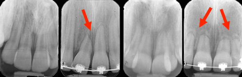 Résorption modérée ayant affecté une centrale dans un cas et plusieurs dents dans l'autre cas.