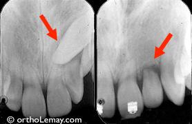 Résorption imortante d'une dent latérale causée par une canine incluse.