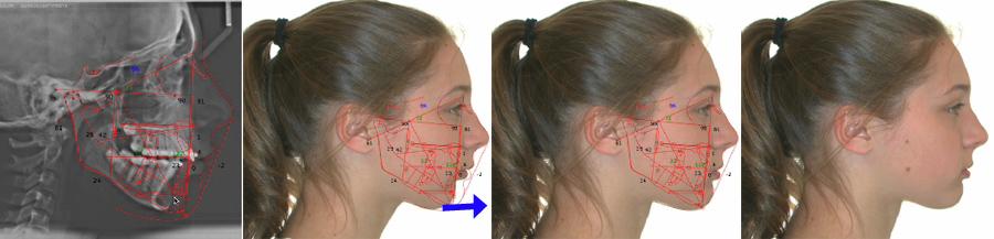 Simulation d'un avancement de la mâchoire inférieure pour visualiser les effets du traitement.
