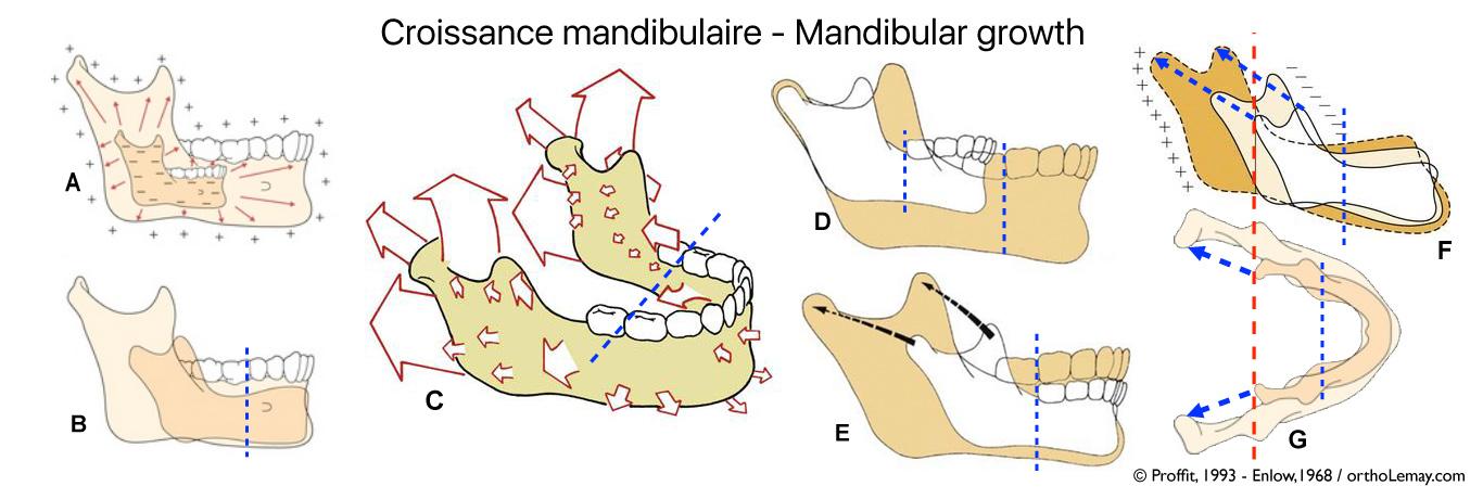 La croissance mandibulaire est un phénomène complexe qui se produit en 3 dimensions jusqu'à la fin de l'adolescence. La croissance mandibulaire est un phénomène complexe qui se produit en 3 dimensions jusqu'à la fin de l'adolescence. Il est essentiel de bien comprendre ce processus de croissance pour intervenir au moment opportun. Le développement se produit surtout vers l'arrière après l'âge de 6 -7 ans.
