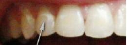 Taches de décalcification ou déminéralisation sur la surface de l'émail dentaire suite à un traitement d'orthodontie.