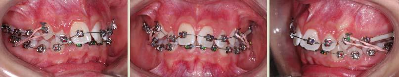 Port d'élastiques orthodontiques classe 2 avec un fil niti ou CuNiTi et des forces légères