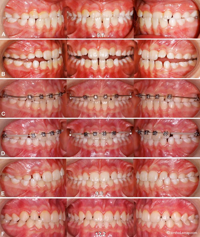 Malocclusion dentaire classe 3 avec interférence fonctionnelle antérieure et déviation mandibulaire. Une intervention orthodontique précoce permet de corriger ce problème.