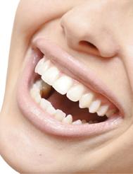 Les dents de sagesse ou troisièmes molaires ne causent pas de chevauchement dentaire et il n'est pas justifié de les extraire pour cette raison.