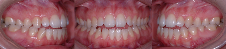 Béance antérieure en dentition permanente (absence de contacts entre les dents)