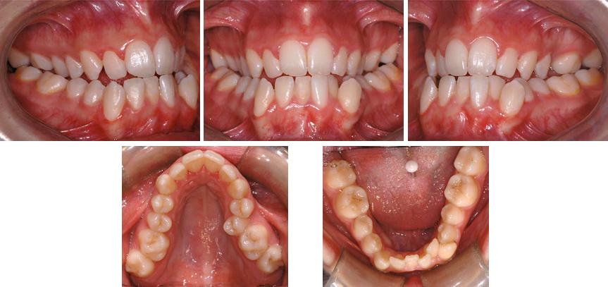 Occlusion croisée postérieure bilatérale; contraction importante de la mâchoire supérieure