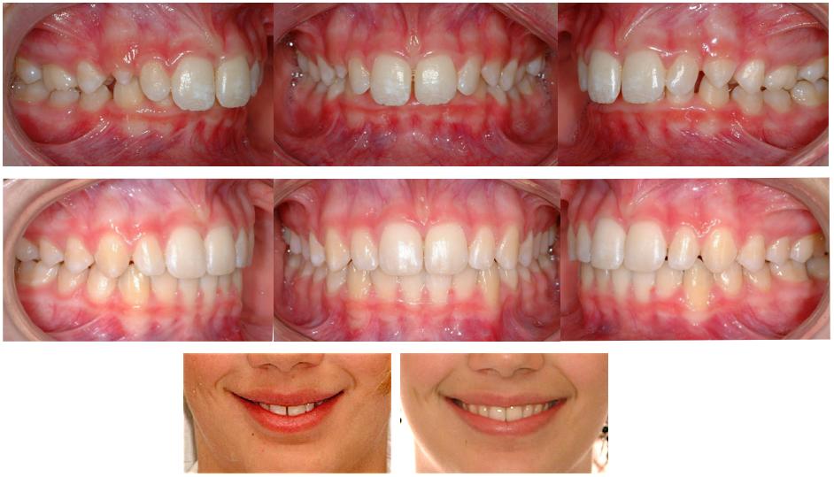 Adolescente de 12 ans avec un surplomb antérieur vertical et horizontal excessifs (overbite et overjet). Les corrections rendent les dents inférieures plus visibles et le sourire plus large.