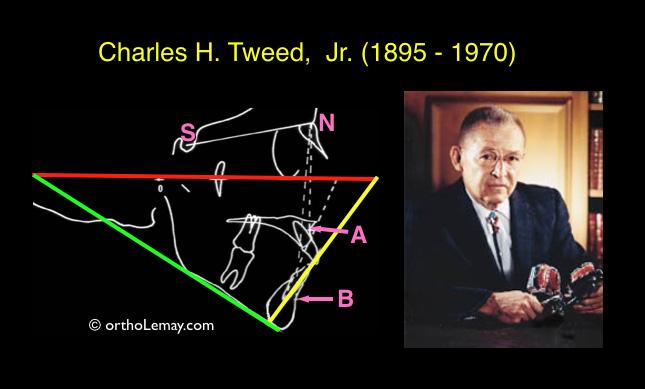 Charles Tweed cephalometric analysis, analyse céphaloimétrique de Tweed.