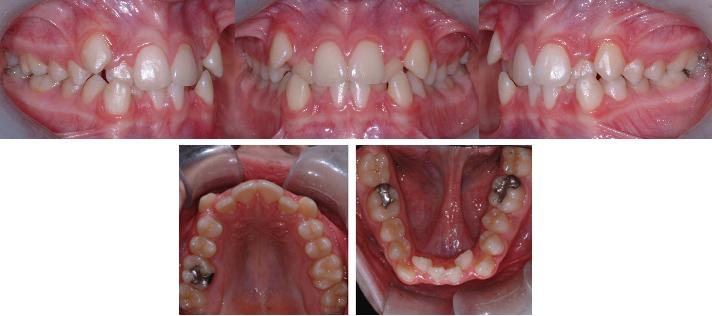 Adolescent (12 ans)avec manque d'espace et chevauchement dentaire aux deux arcades
