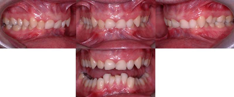 Le surplomb vertical excessif (dents supérieures recouvrant complètement celles du bas) affecte la fonction et occasionne de l'usure des dents chez ce patient de 30 ans.