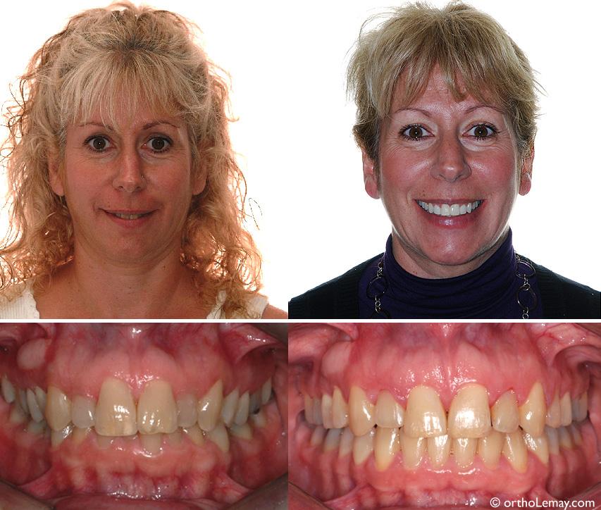 Dents inférieures dégagées après le traitement et sourire plus large. Des facettes ont été faites sur les latérales supérieures.