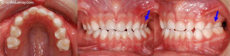 Occlusion croisée postérieure en dentition temporaire (garçon de 5 ans). Cette condition persistera en dentition permanente