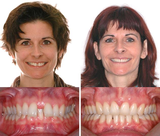 LEs corrections ont permis de fermer le diastème et dégager les dents inférieuresmordaient au palais.