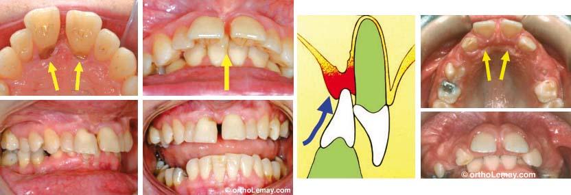 En présence d'un surplomb antérieur vertical excessif (overbite), les dents inférieures peuvent mordre dans la muqueuse du palais et l'endommager en causant du déchaussement et éventuellement une perte osseues.