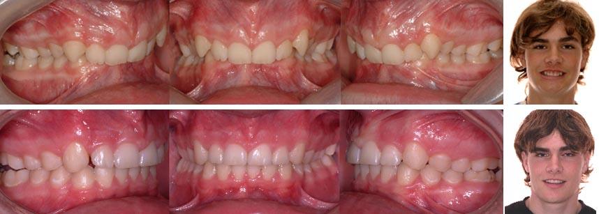 Malocclusions dentaires trait es en orthodontie anodontie for Bagues dentaires interieur