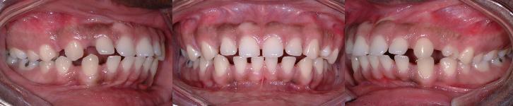Espaces excessifs entre les dents