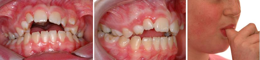 Exemple de l'effet à long terme sur la dentition. Jeune fille de 12 ans ayant sucé son doigt plusieurs années; béance antérieure, contraction et déformation de la mâchoire supérieure, dents supérieures avancées.