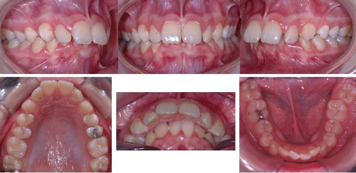 """Malocclusion """"Classe 2"""" avec dents supérieures avancées et dents inférieures qui mordent dans le palais"""