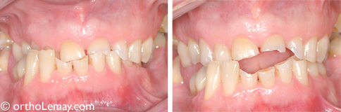 Usure excessive des dents chez une personne de 67 ans