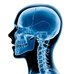 Tête et mâchoire chirurgie orthognathique