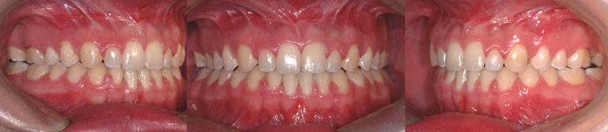 Fermeture de la béance antérieure à la suite de l'orthodontie et d'une chirurgie aux mâchoires. Il en résulte une meilleure fonction (mastication et phonétique).