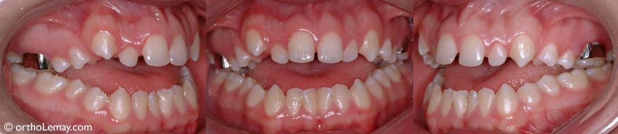Sévère béance antérieure nécessitant de l'orthodontie et une chirurgie pour corriger la mauvaise relation entre les mâchoires d'un garçon de 17 ans.
