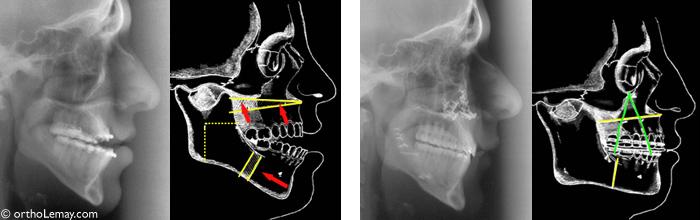 Radiographies avant et après la chirurgie et diagrammes illustrant les mouvements effectués sur les mâchoires