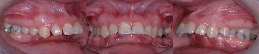 Rétrognathie mandibulaire sévère (mâchoire inférieure reculée) chez une patiente de 31 ans