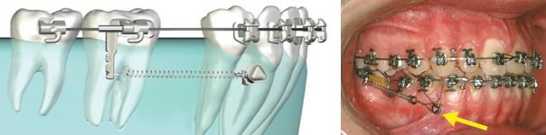 Mini-implant d'ancrage supérieur (mini-vis orthodontique) utilisé pour fermer un espace.