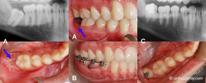 implant d 39 ancrage temporaire orthodontique mini vis orthodontiste sherbrooke. Black Bedroom Furniture Sets. Home Design Ideas