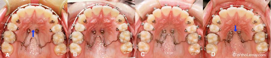 implant d 39 ancrage temporaire orthodontique mini vis. Black Bedroom Furniture Sets. Home Design Ideas