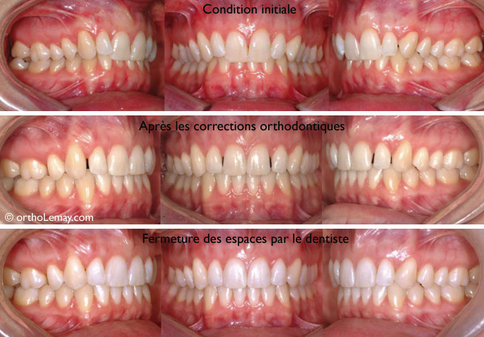 largissement des deux latérales supérieures trop étroites pour éliminer les espaces restants après l'orthodontie et améliorer l'esthétique. Ce travail est fait par le dentiste généraliste.