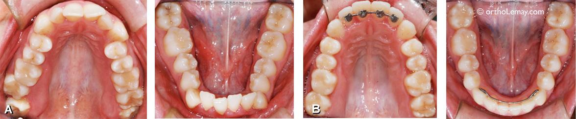 Expansion dentaire pour corriger du chevauchement ou encombrement dentaire chez une adulte.