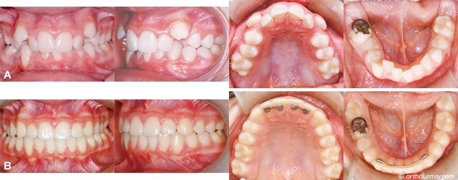 traitement de malocclusions dentaires avec manque d 39 espace orthodontiste sherbrooke. Black Bedroom Furniture Sets. Home Design Ideas