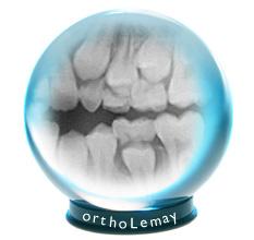 Les radiographies sont une boule de cristal prédisant l'avenir de l'éruption dentaire.