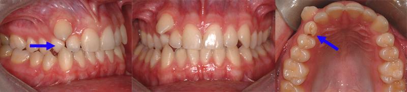 Canine permanente supérieure droite qui sort au-dessus d'une dent temporaire qui n'est pas tombée (flèche). Il est parfois indiqué d'extraire des dents temporaires pour faciliter l'éruption des dents permanentes.