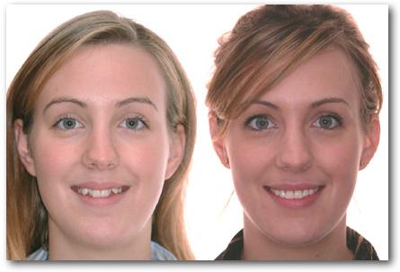 sourires de patients trait s en orthodontie par les orthodontistes lemay sherbrooke. Black Bedroom Furniture Sets. Home Design Ideas